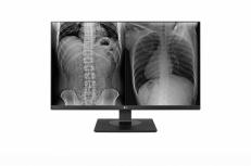 Monitor de Revisión Clínica LG 27HJ713C-B LED 27'', 4K Ultra HD, Widescreen, HDMI, Negro